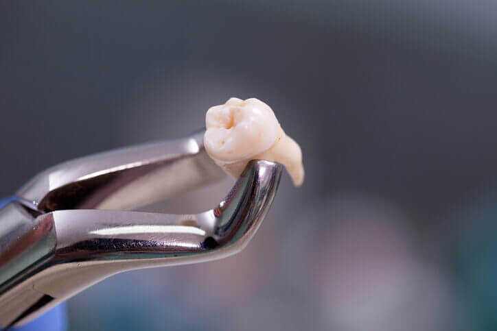 dental extraction in Richmond
